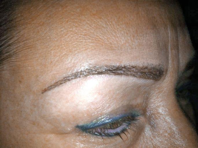 Exemple d\'un sourcil redessiné à Zen Essence avec la technique du maquillage permanent